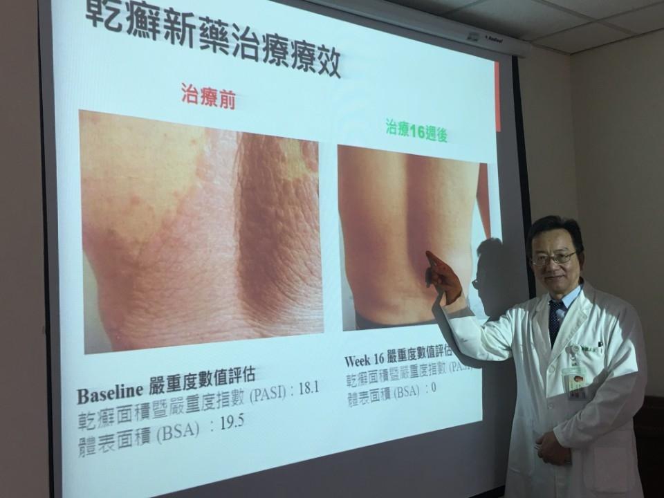 乾癬 治療不是問題! 問題在…新藥的可近性。(記者陳信宏翻攝)