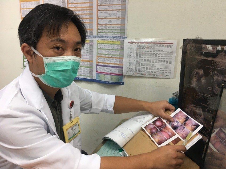 懷孕罹患闌尾炎 腹腔鏡手術切除。(記者張光雄翻攝)